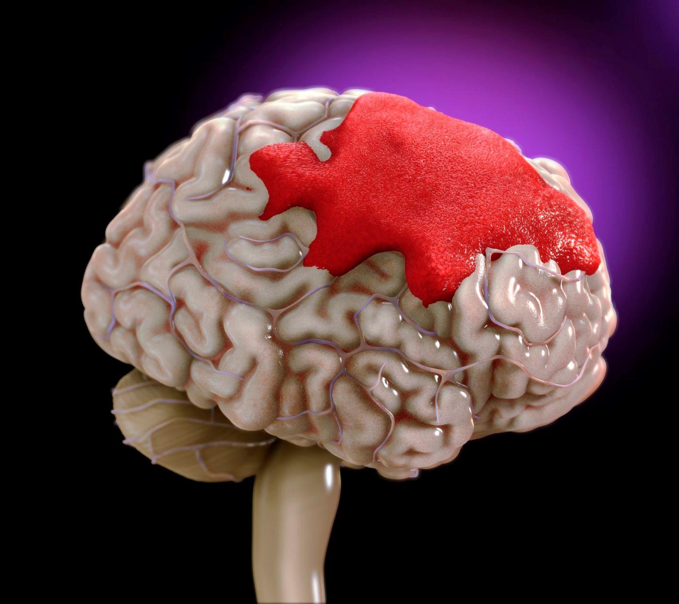 خطر ابتلا به سکته مغزی با فشارخون بالا