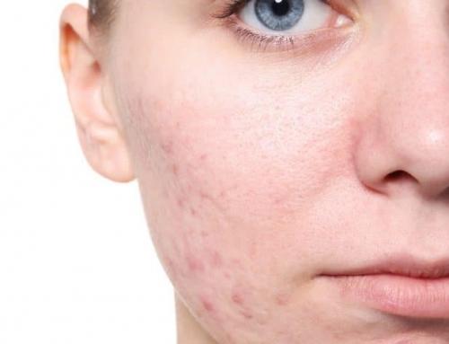 افزایش یا کاهش سطح تستوسترون در زنان
