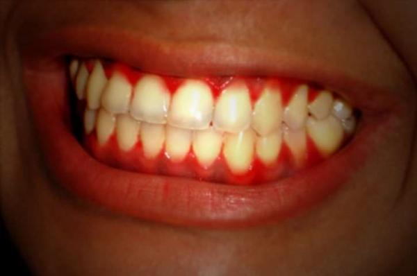دیابت و بهداشت دهان و دندان