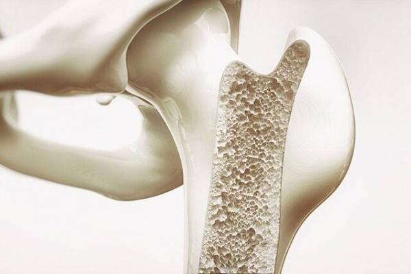 پوکی استخوان درمان