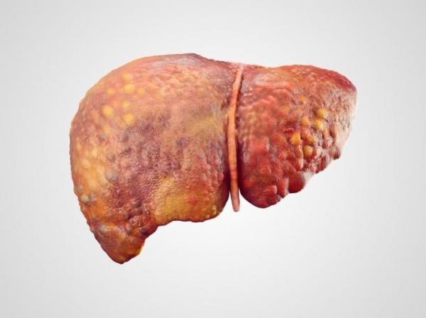 سرطان کبد و علائم آن